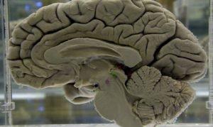 Researchers Tap Brain To make Paralysed Man Speak